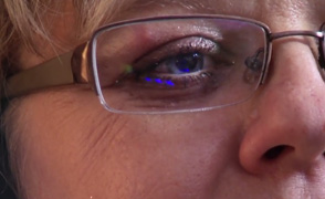 Sara Palmer eye EMDR