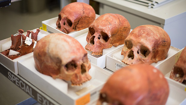 Skulls from the excavation of the Jamestown colony, prepped for examination at the Smithsonian Institution.