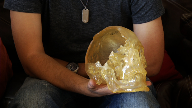 Army veteran Erik Castillo holds a plastic model of his skull. Shrapnel from a bomb blast shattered approximately 40 percent of his skull.