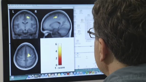 Scientists study the effects of aging on the brain.