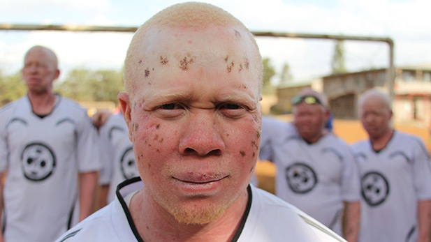 Nasoro is a member of the Albino United Football team. Nairobi, Kenya.
