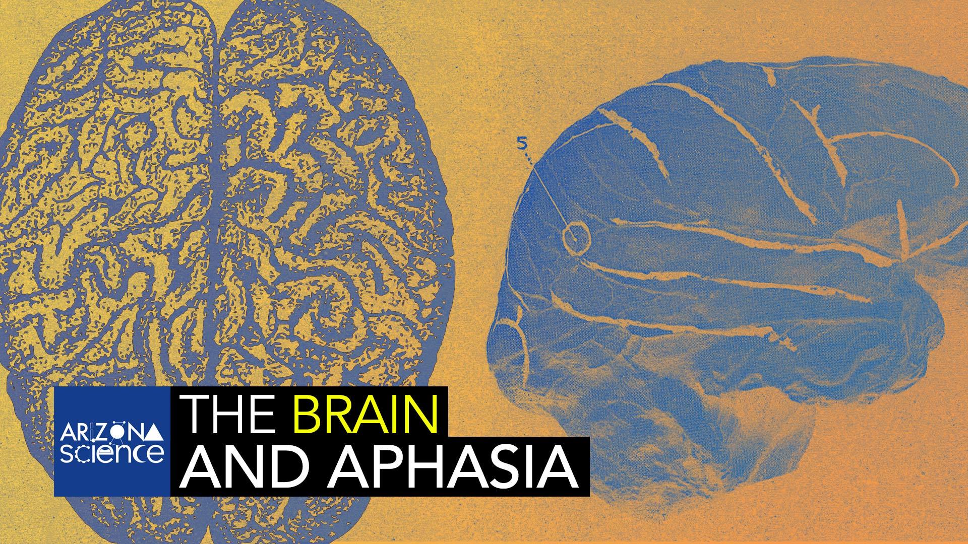 AZSCI 101 Brain Aphasia