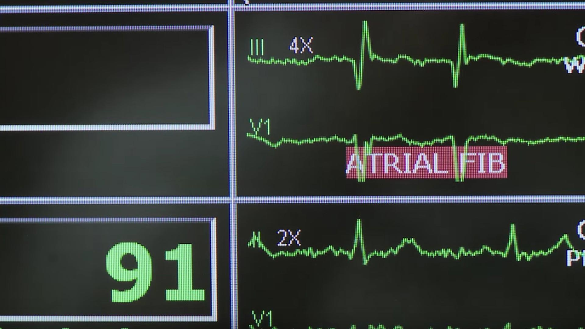 Medical heart rate monitor hero
