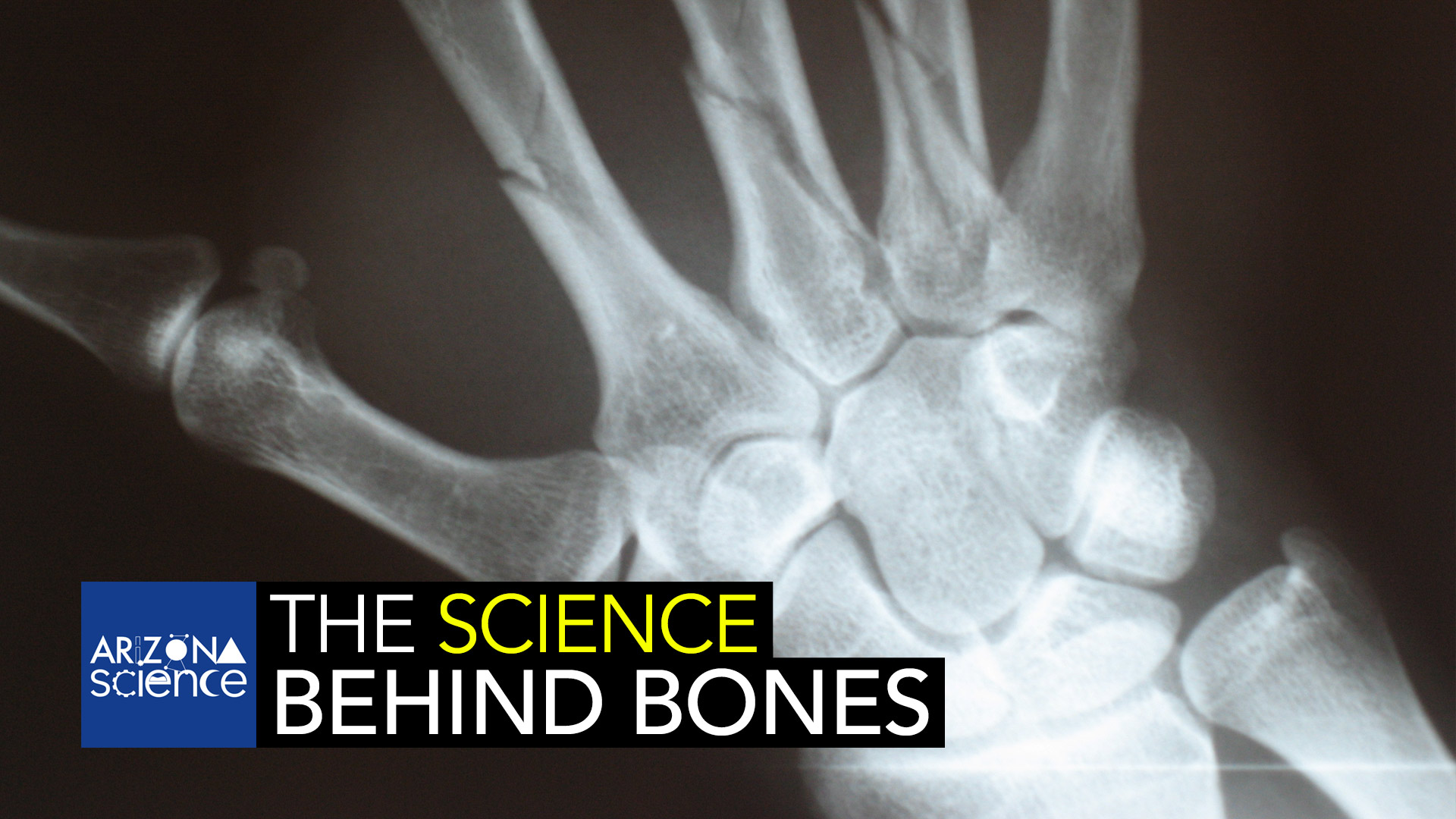 UA Professor John Szivek wants to make bones better.