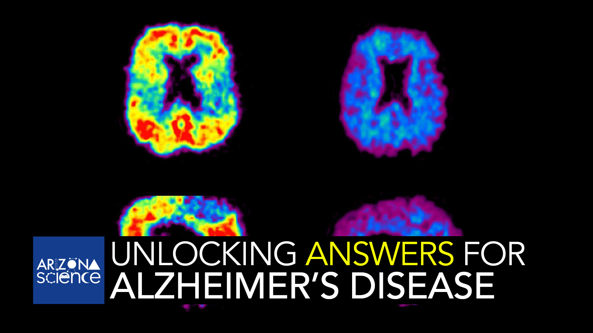 This image shows a PiB-PET scan of a patient with Alzheimer's disease on the left and an elderly person with normal memory on the right. Areas of red and yellow show high concentrations of PiB in the brain and suggest high amounts of amyloid deposits in these areas.