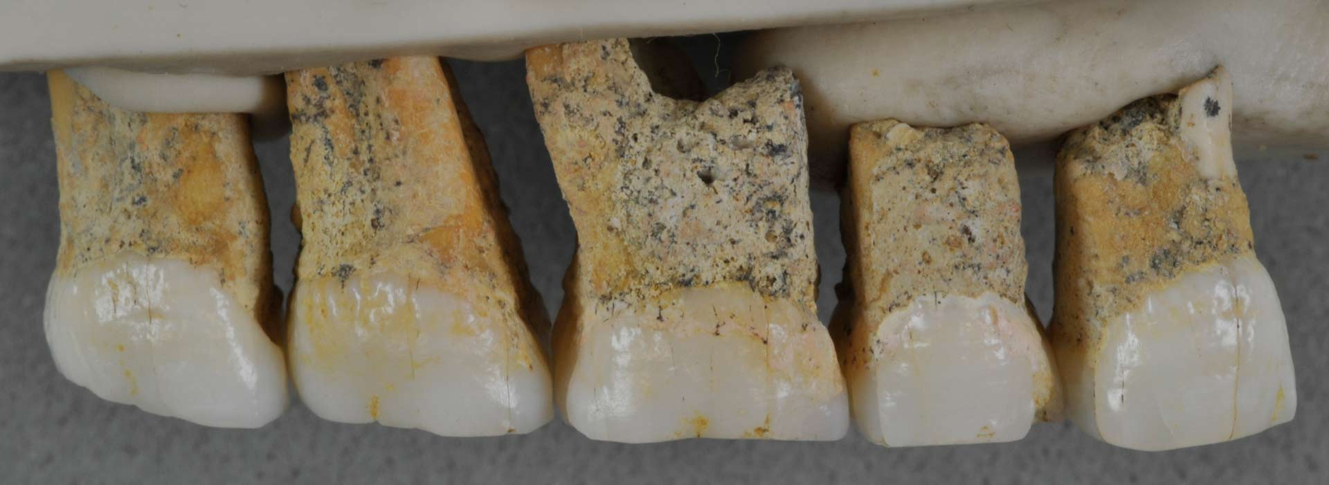 luzon teeth