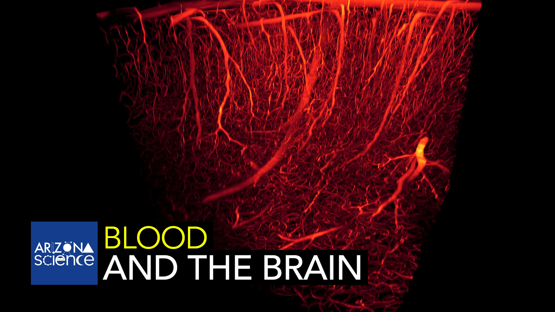 A University of Arizona professor is researching the relationship between neural activity and blood oxygen level.