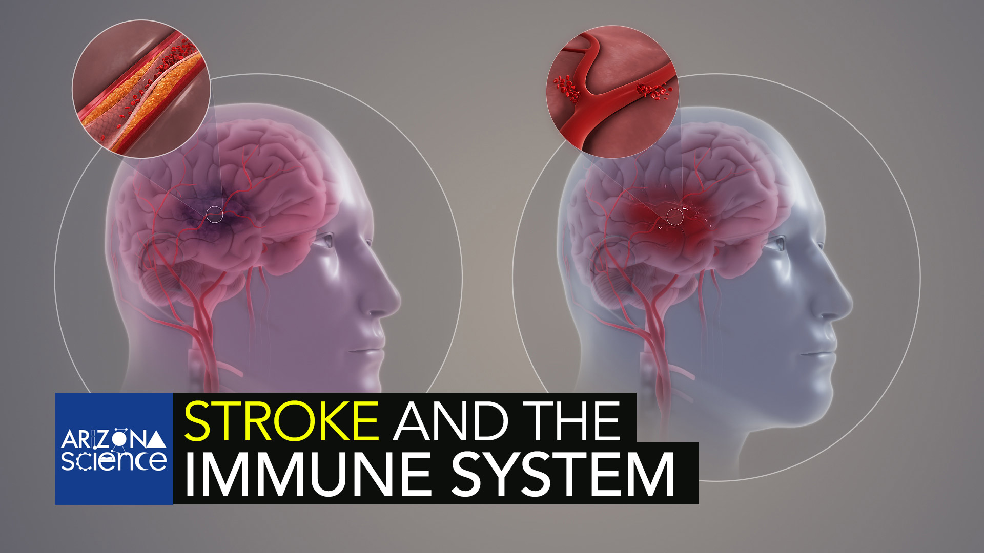 Researching new methods to recover brain tissue lost after a stroke.