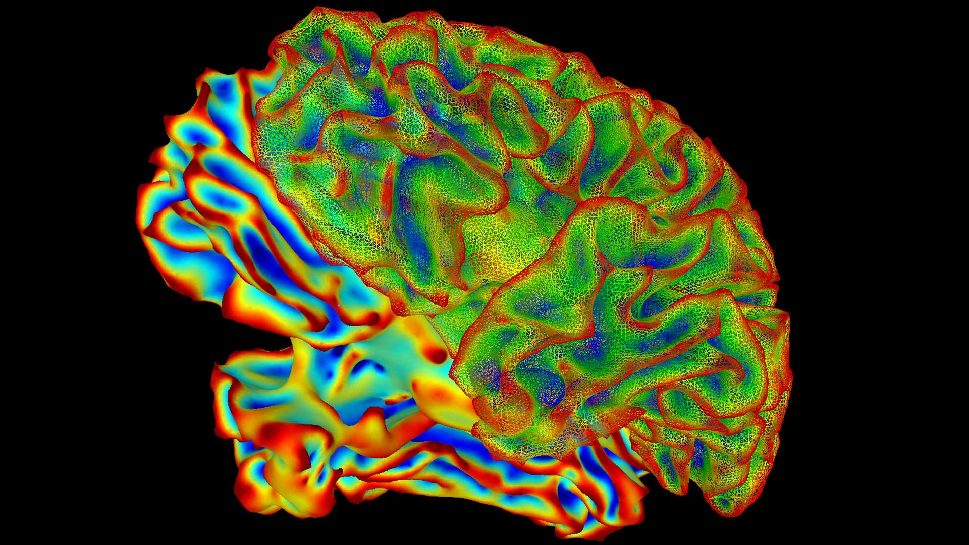 Image of the brain created from data generated by functional Magnetic Resonance Imaging (fMRI).