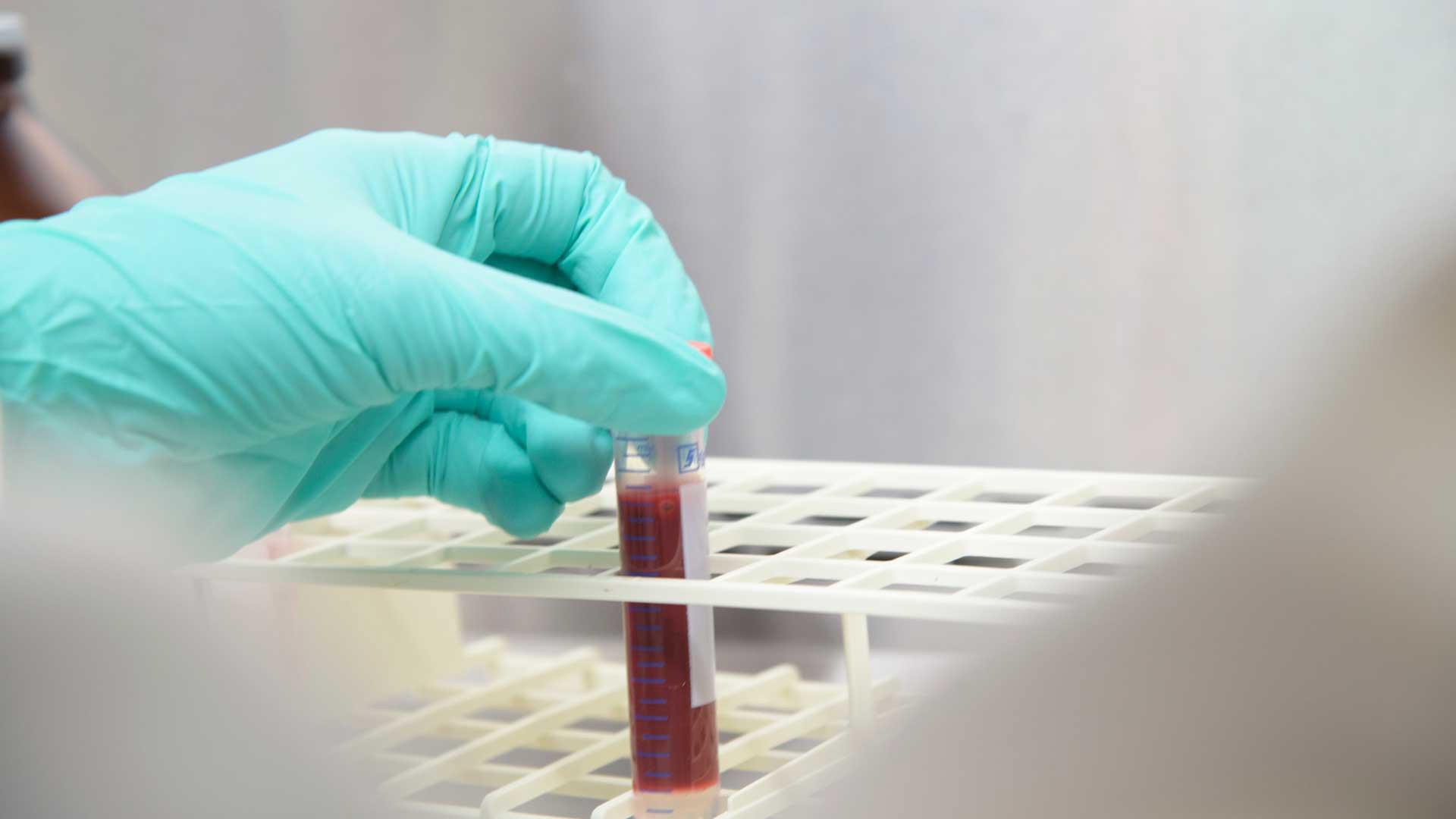 UA antibody testing, June 2020