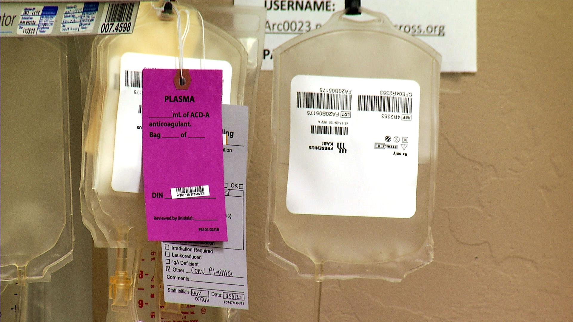 Various collection bags at an American Red Cross blood donation center in Tucson on May 1, 2020. A tag on one of the bags indicates it will be used to collect convalescent plasma from a COVID-19 survivor.