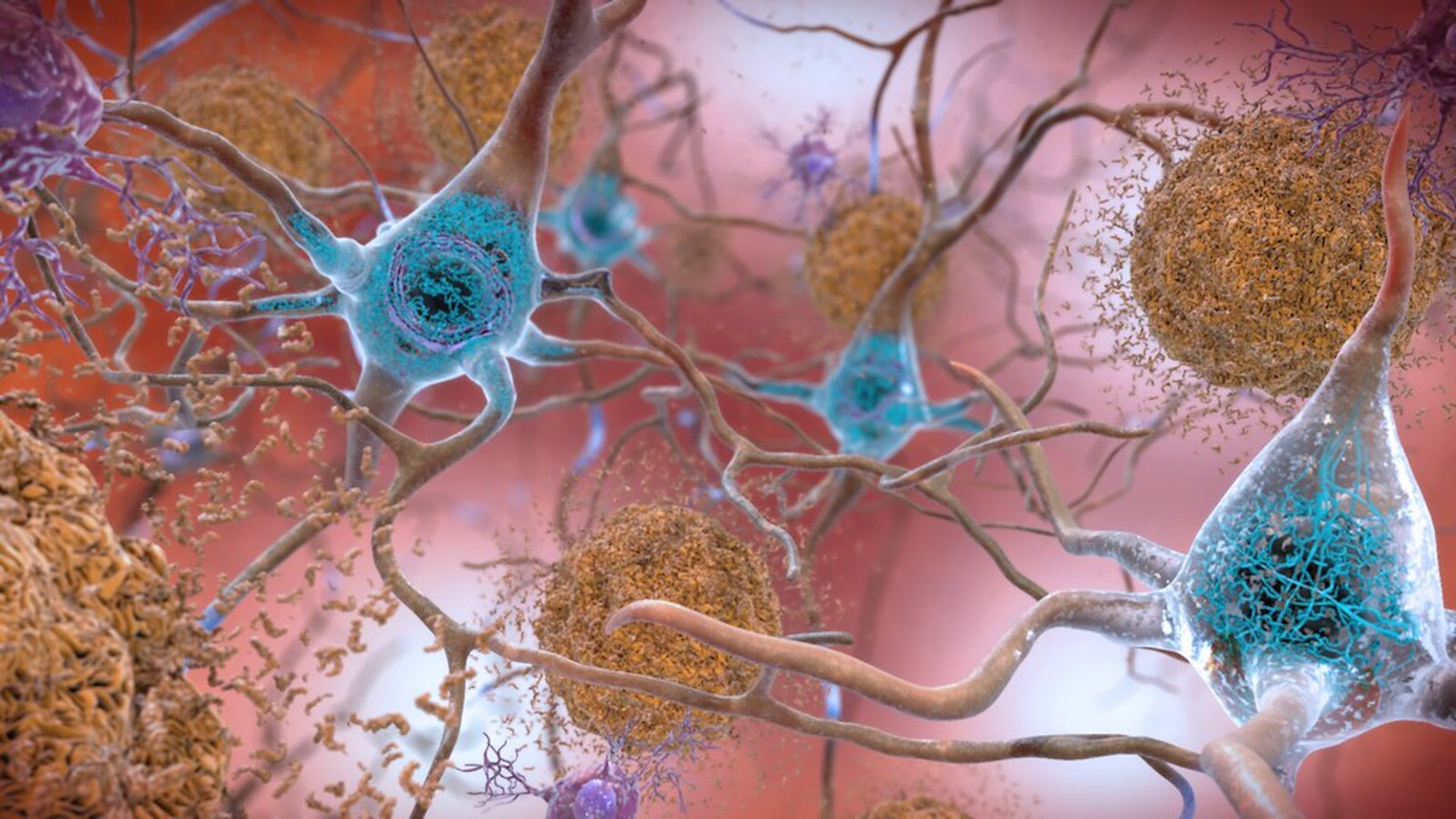 Tangled proteins in the Alzheimer's affected brain harm communication between nerve cells.